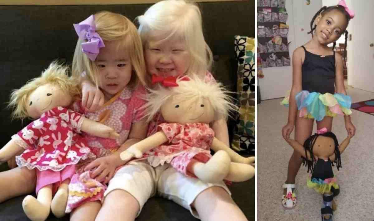 bambole per disabili 8