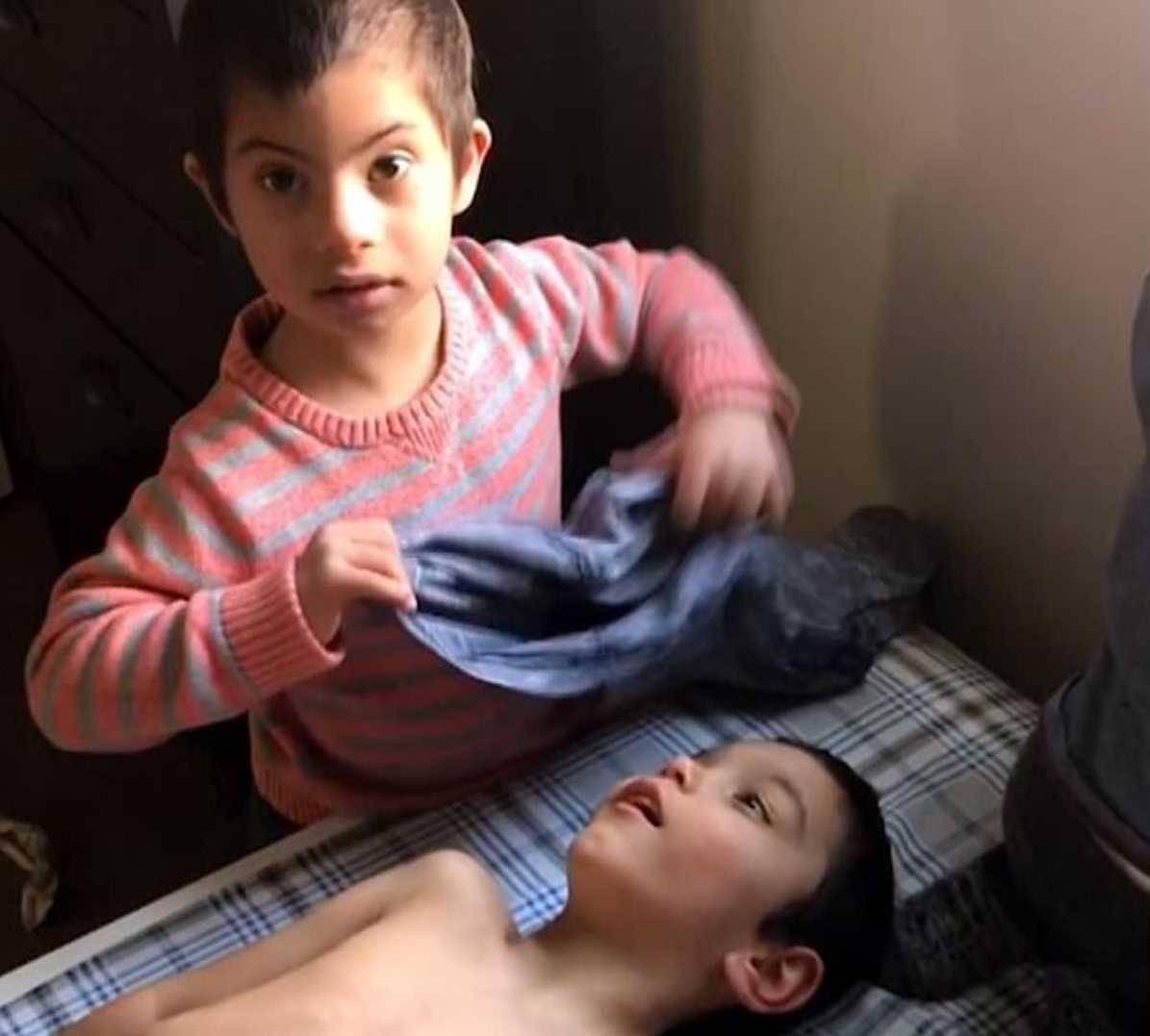 bambino adottato sindrome di down