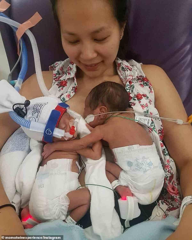 neonate premature si abbracciano 8