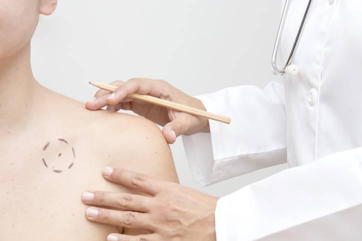 melanoma cancro della pelle