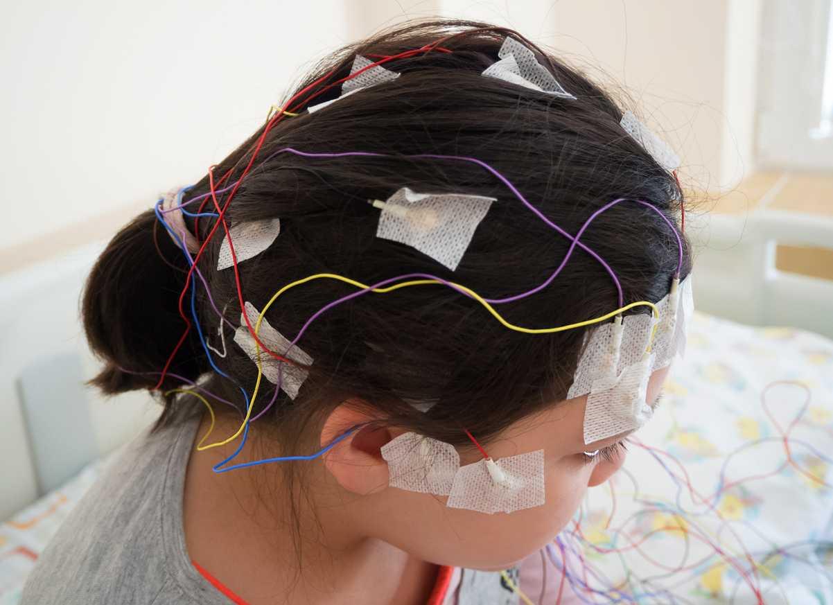 studio epilessia autismo