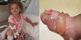 Bambina di due anni con gravi ustioni