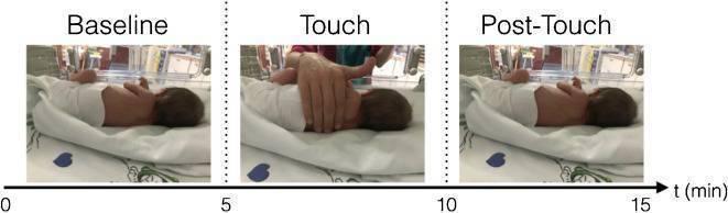 neonati prematuri carezze