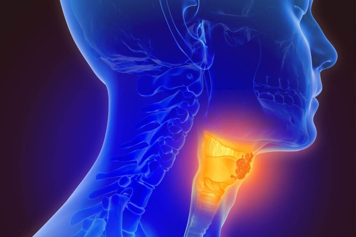 Tumori alla gola da Papilloma virus, è boom negli ultimi dieci anni