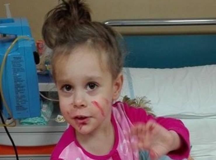 bambina operata in Germania 6