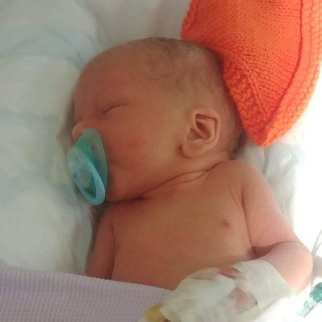 neonato con sindrome senza nome 3