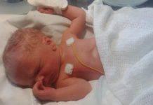 neonato con sindrome senza nome