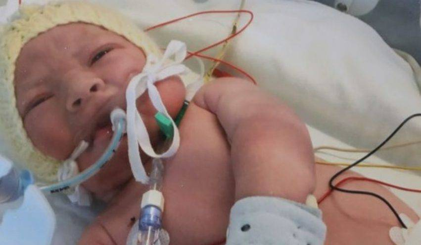 neonato senza vita si riprende 2