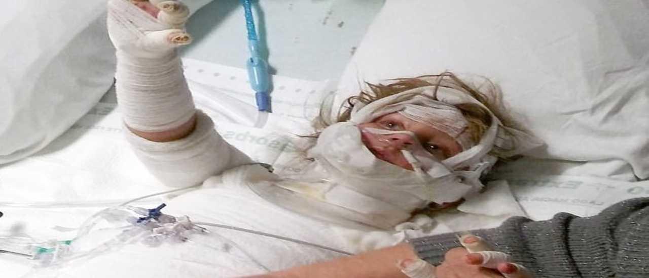 Bambina di 5 anni gravemente ustionata per una candela: l'appello della mamma   FOTO