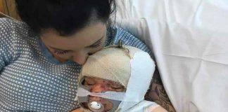bambino gravemente ustionato 2