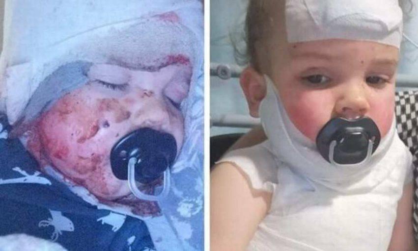 bambino gravemente ustionato