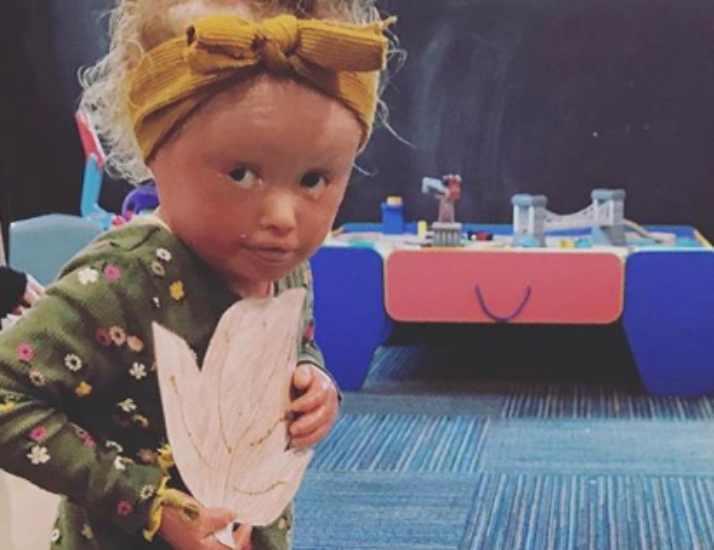 bambina con l'ittiosi arlecchino 4