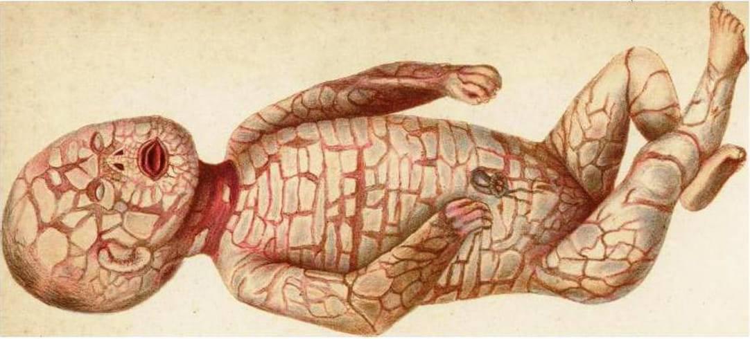 ittiosi arlecchino malattia rara