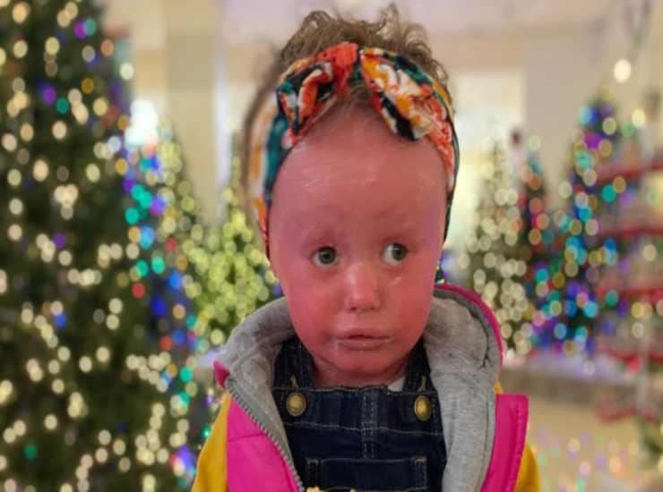 bambina con l'ittiosi arlecchino 6