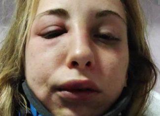 ragazza pubblica foto di un pestaggio