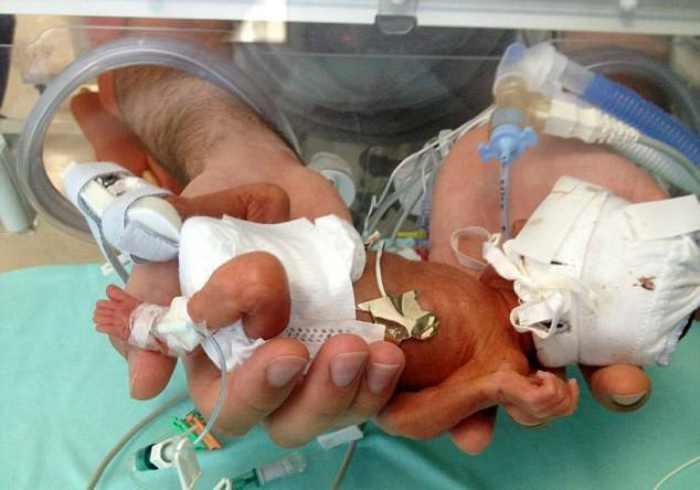 Neonati prematuri ed infezioni batteriche