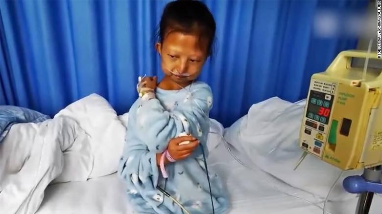 ragazza cinese muore di fame