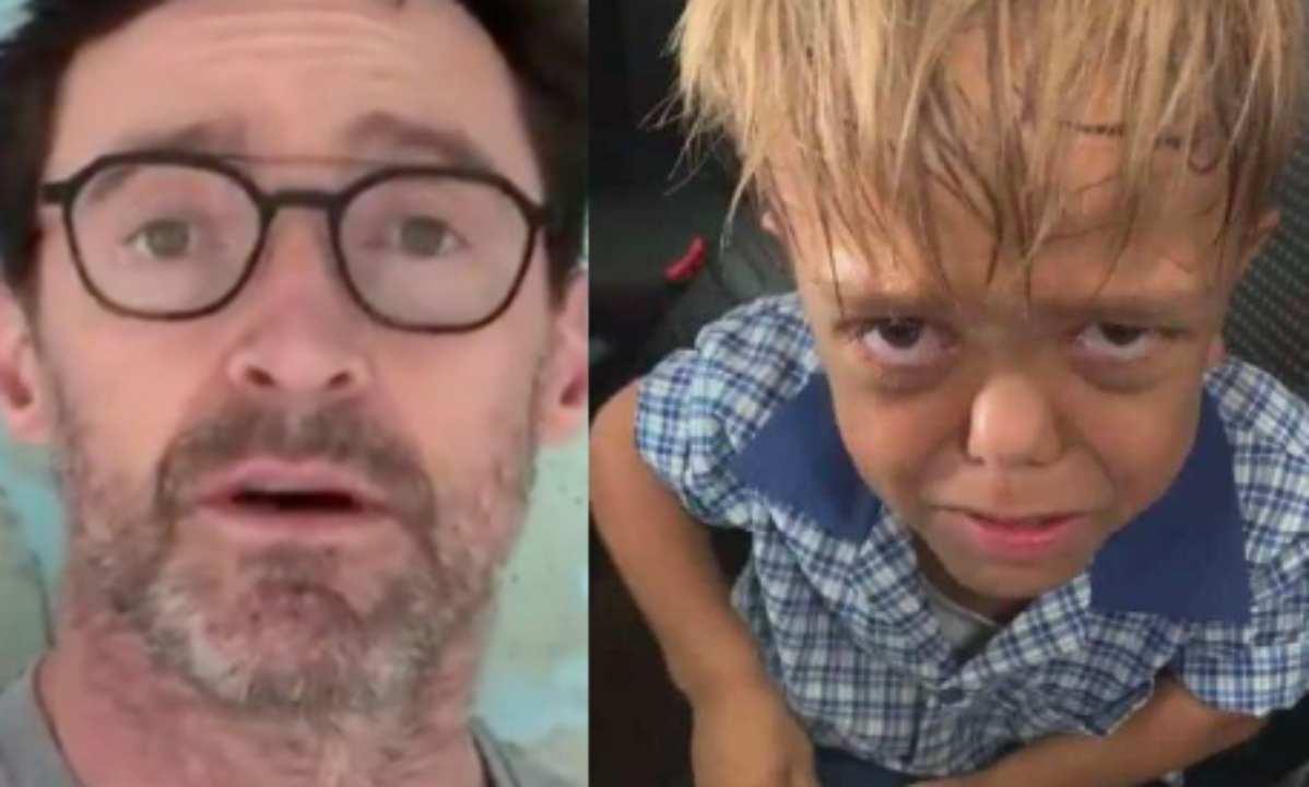 Bambino bullizzato perché affetto da nanismo: la risposta del mondo commuove | VIDEO