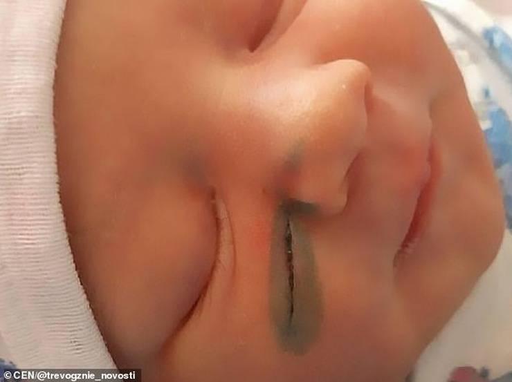 Neonata ferita cesareo