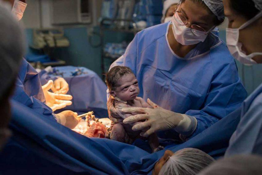 neonata nasce arrabbiata