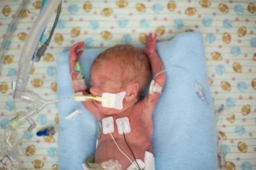 foto rubata neonato morto