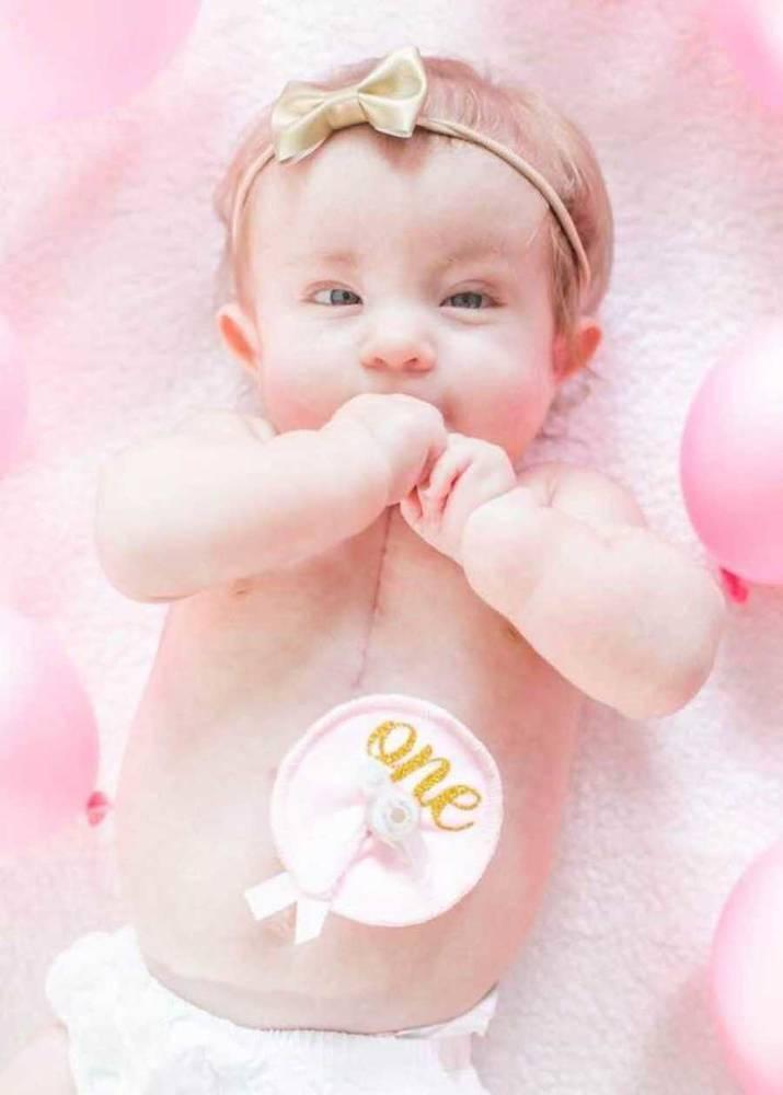 bambina con la Trisomia 18 1
