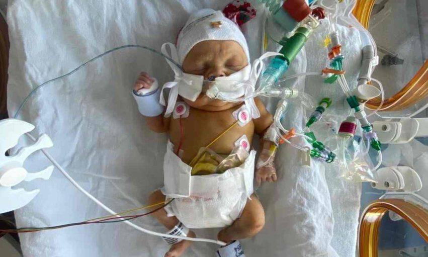 Bambino nato a 23 settimane