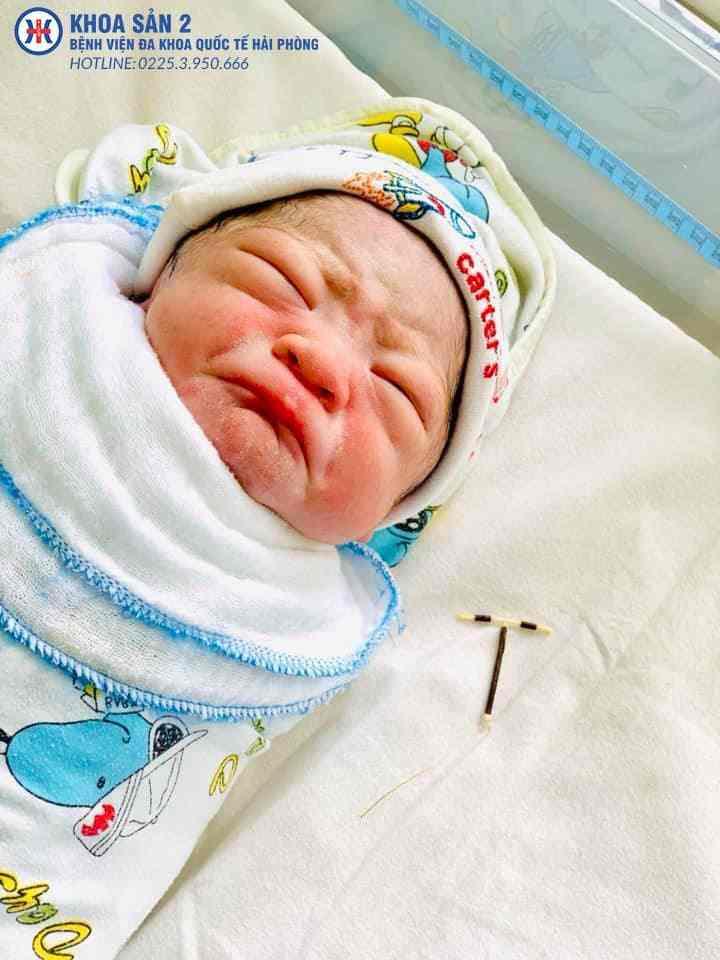 neonato con la spirale in mano 479