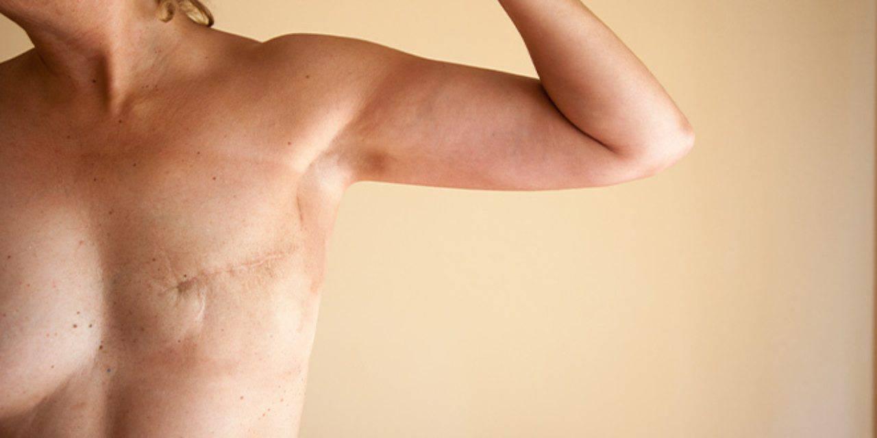 Tumore al seno (fonte Intimina)