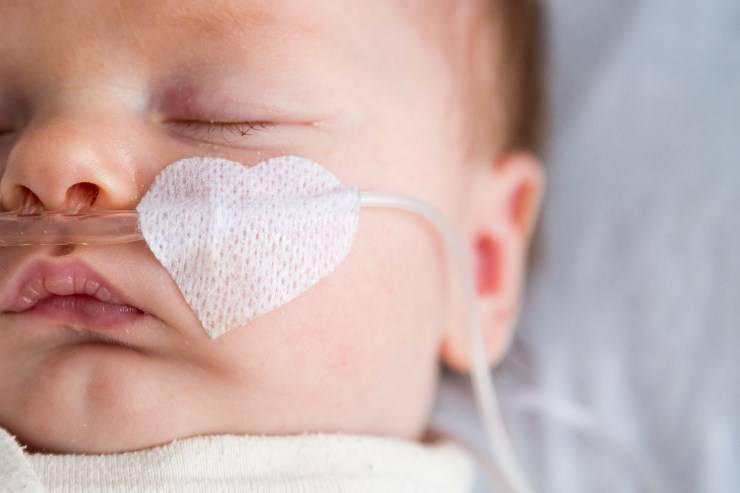 neonata con Sma