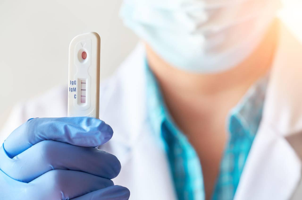 tampone rapido antigenico