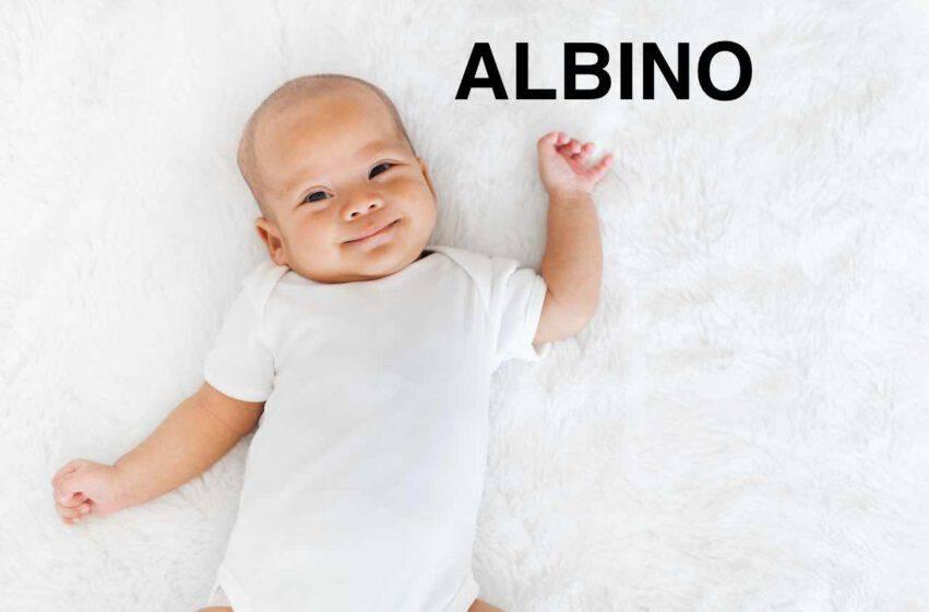 bambino nome albino