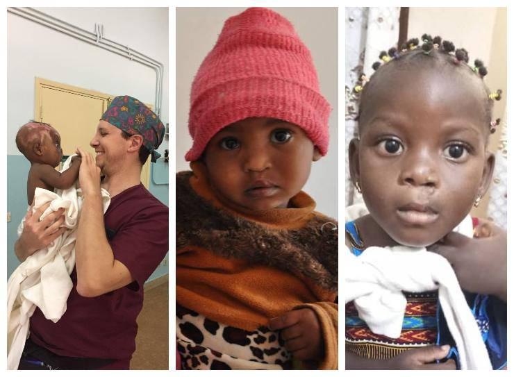 Bambini curati da Emergenza Sorrisi onlus